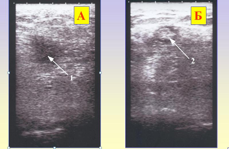 УЗИ-сканограмма места инъекции «Тетлонга-250»   сразу после введения «А» и через 10 дней «Б»